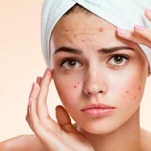 Factores que influyen en el crecimiento del acné